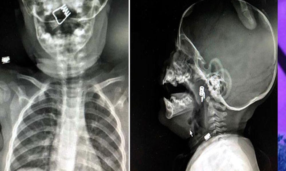 Bir yaşındaki bebeğin boğazından bakın ne çıktı!