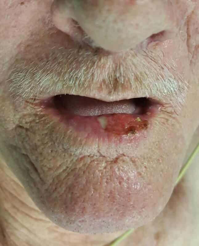 Yara sandı, dudağından 2,5 santimetrelik tümör çıktı