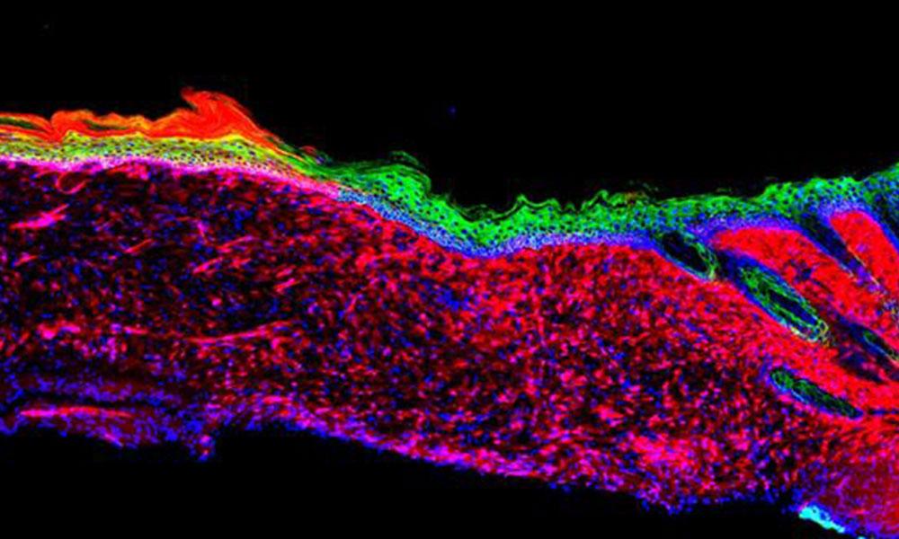 Yeniden programlanan deri hücreleri umut oldu