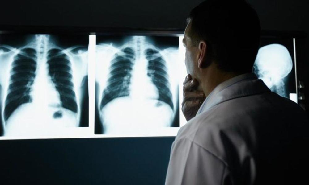 Silikozis hastalığı teşhisinde 'hata' iddiası