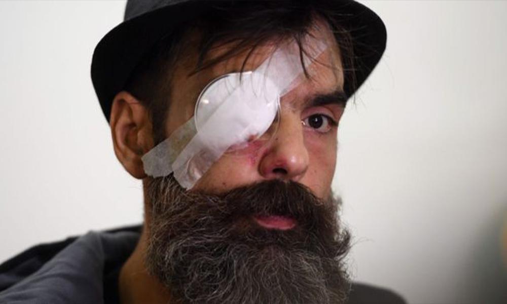 Sarı Yelekler lideri Jerome Rodrigues 'plastik mermiyle' vuruldu, bir gözünü kaybetti