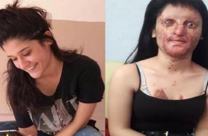 Nişanlısının yüzünü tanınmaz hale getirdiği Berfin için kampanya başlatıldı