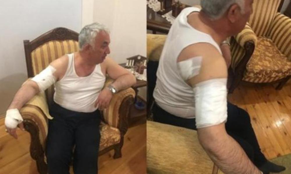 Belediye başkanına köpek saldırısı! Kolundan ve omzundan yaralandı