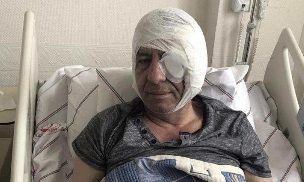 Gazeteci Demirağ dehşet anlarını böyle anlattı: 'Vurun, öldürün' dediler