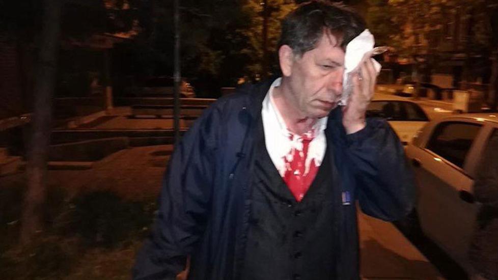 Saldırının ardından gazeteci Yavuz Selim Demirağ'dan ilk yazı: 'Korkmuyorum'