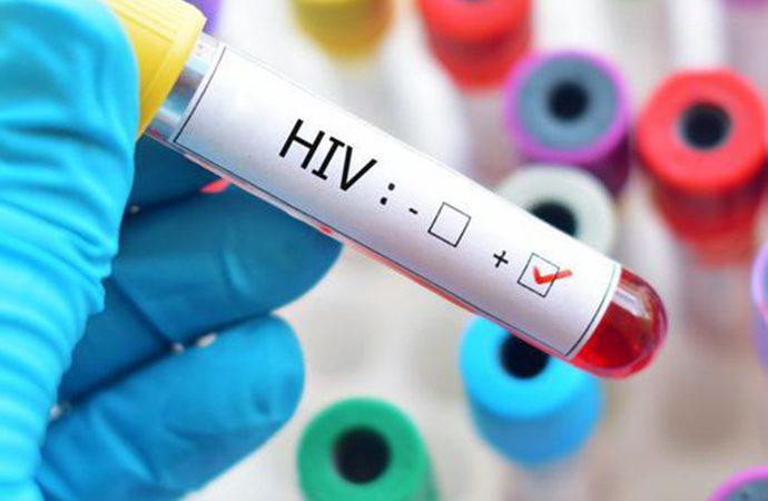 Dünyada azalırken Türkiye 'HIV' patlaması yaşıyor!