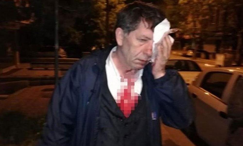 Gazeteci Demirağ'a saldırının araştırılması, AKP ve MHP oylarıyla reddedildi