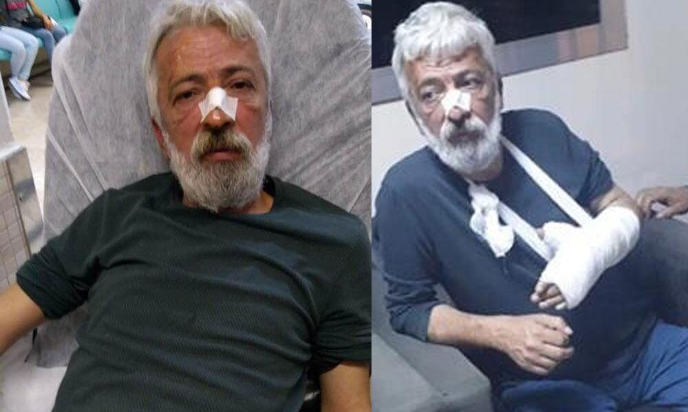 Gazeteci Özyol'a saldıran, MHP'li başkanın şoförü çıktı!