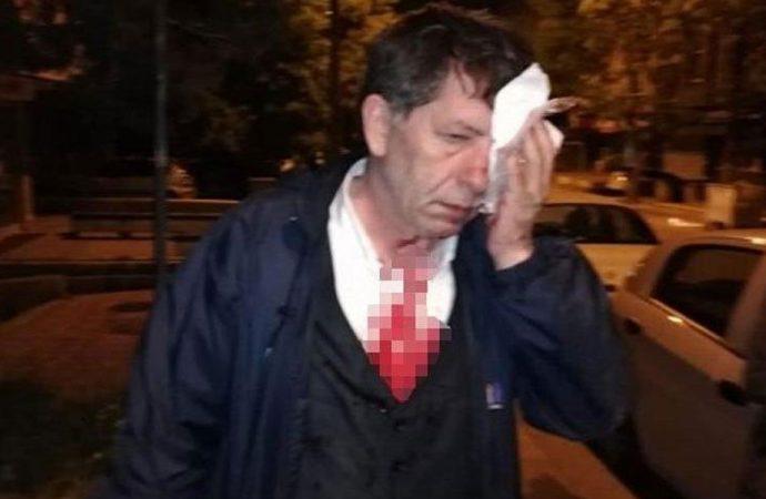 Gazeteci Yavuz Selim Demirağ gece yarısı tahliye edildi: Cezaevlerinde yer olmadığı için…