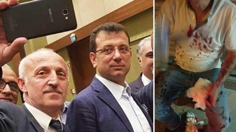 MHP'li Yıldırım, 'Ya susturacağız ya kan kusturacağız' diyerek ismini paylaşmıştı, İmamoğlu'na destek veren bir Ülkücü daha saldırıya uğradı