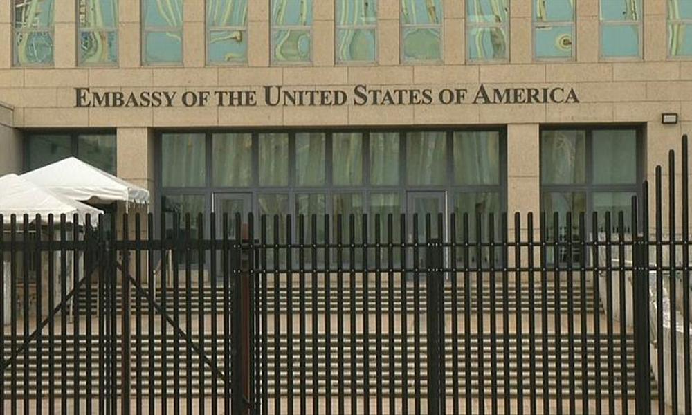ABD ile Küba arasında 'sonik saldırı' krizi… Diplomatların beyninde 'somut farklılıklar' belirlendi!