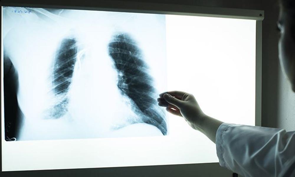 Her yıl 7 milyon insan hava kirliliği nedeniyle ölüyor