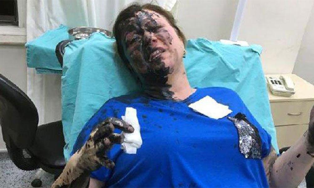 İş kadınını darp edip, üzerine siyah renkli sıvı madde döktüler