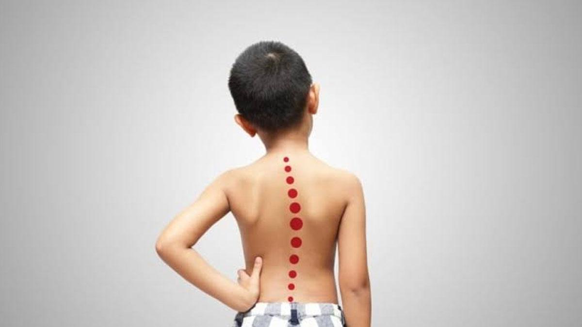 Çocuklarda omuz asimetrisine ve çıkık kürek kemiklerine dikkat!