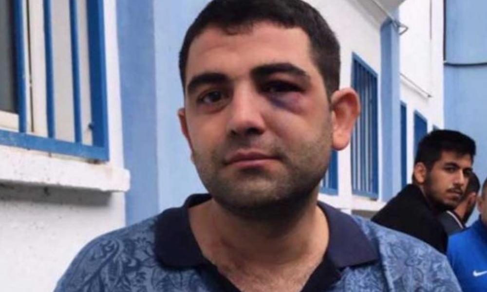 Amedspor-Sarıyer maçında ırkçı saldırı! Kürt taraftarlar linç edildi, sosyal medya 'ben de Kürdüm' diye yanıt verdi