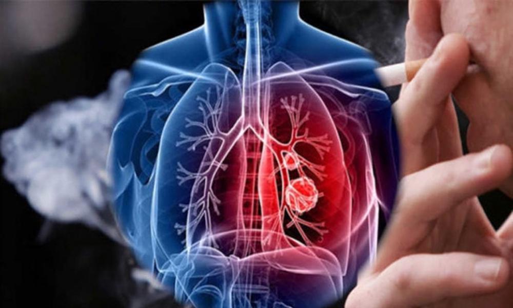 En büyük etkeni sigara… İşte akciğer kanserinin en önemli 5 belirtisi