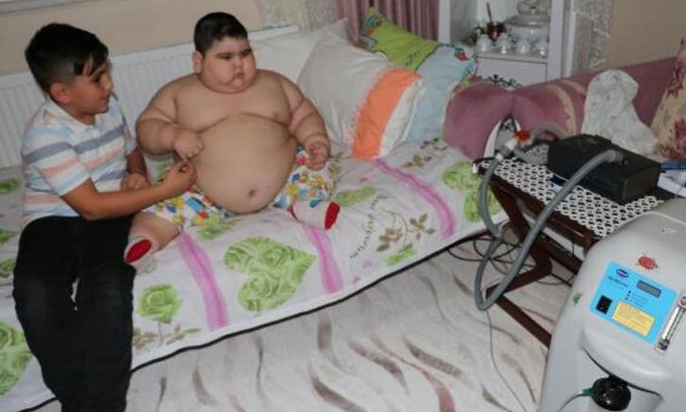 4 yaşında 70 kilo! 'Solunum cihazı olmadan uyuyamıyor'