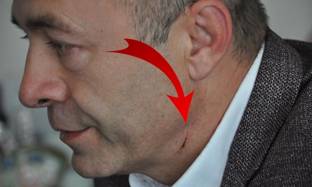 CHP'li Belediye Başkanı Recai Çakır'a çakılı saldırı
