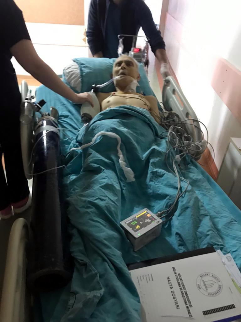 Ameliyatta unutulan gazlı bez nedeniyle ölüme soruşturma