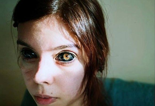 Gözbebeklerini siyaha boyattı, kör oldu