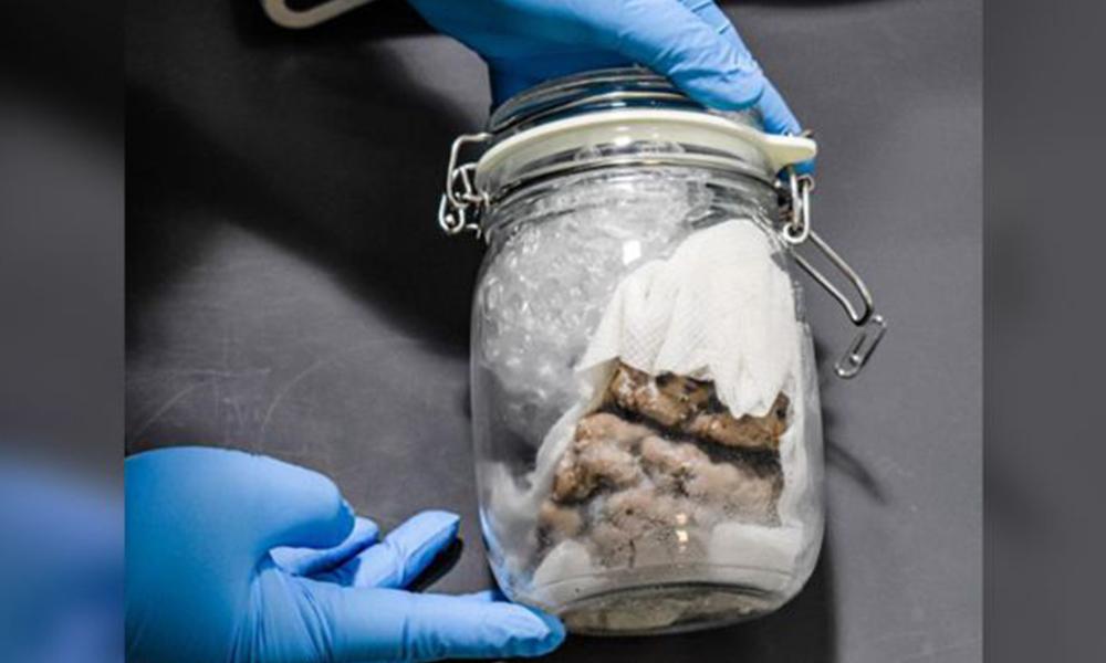 Gümrük yetkilileri sınır kapısında 'kavanoz içinde insan beyni' buldu