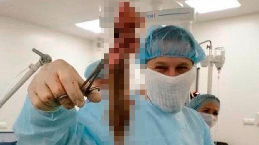 Haftalarca karın ağrısı çekti! Çıkana doktorlar bile inanamadı