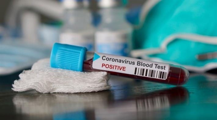 İran'da bir yetkili daha koronavirüse yakalandı, ölenlerin sayısı 26'ya yükseldi