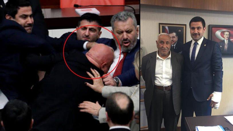 Engin Özkoç'a yumruk atan AKP'li vekilin kolu alçıya alındı