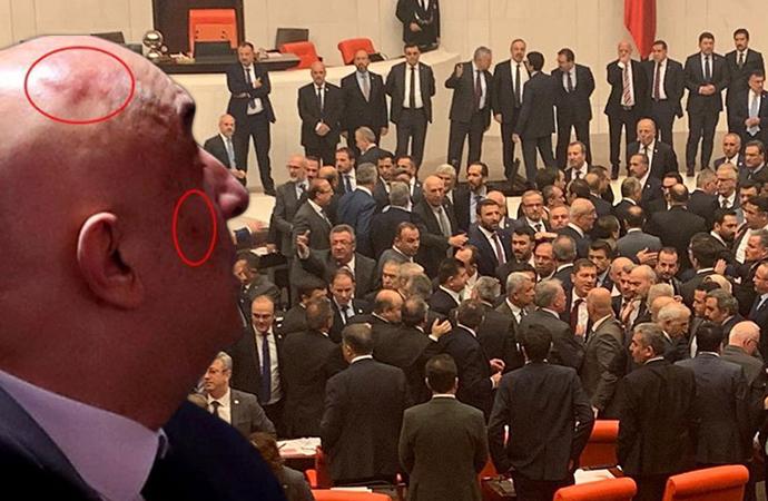 Meclis'teki kavga sonrası Özkoç'taki darp izleri böyle görüntülendi