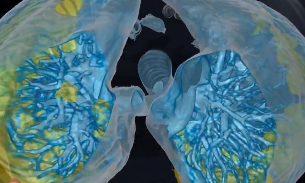 59 yaşındaki hastanın görüntüleri paylaşıldı… İşte koronavirüsün akciğere etkisi