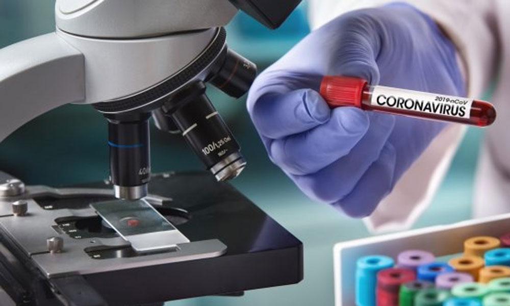 Flaş… Çin'den gelen testler yüzde 80 yanlış sonuç veriyor iddiası!