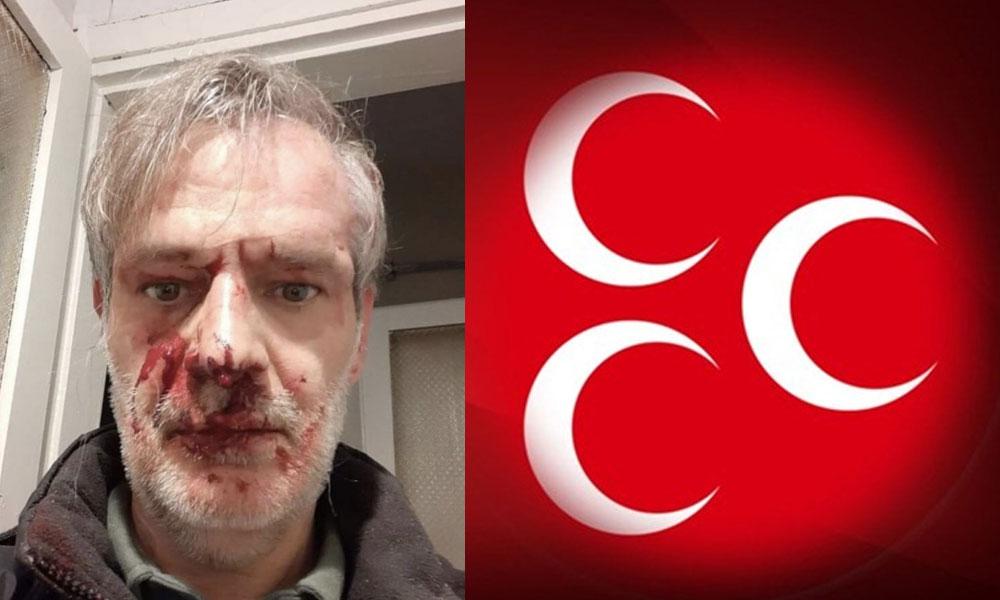 MHP Grup Başkanvekili Erkan Akçay'dan 'dayak' paylaşımı