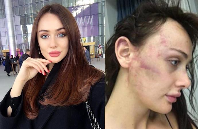 Sevgilisinden şiddet gören Sırp model gözyaşlarıyla anlattı: Yatakta ölmeyi bekliyordum