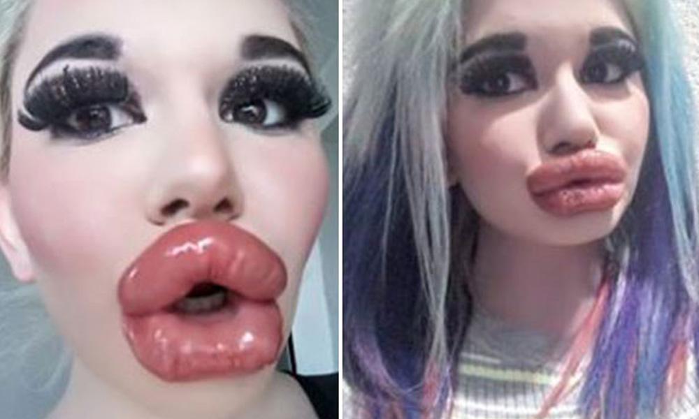 Barbie'ye özendi defalarca dudak dolgusu yaptırdı…