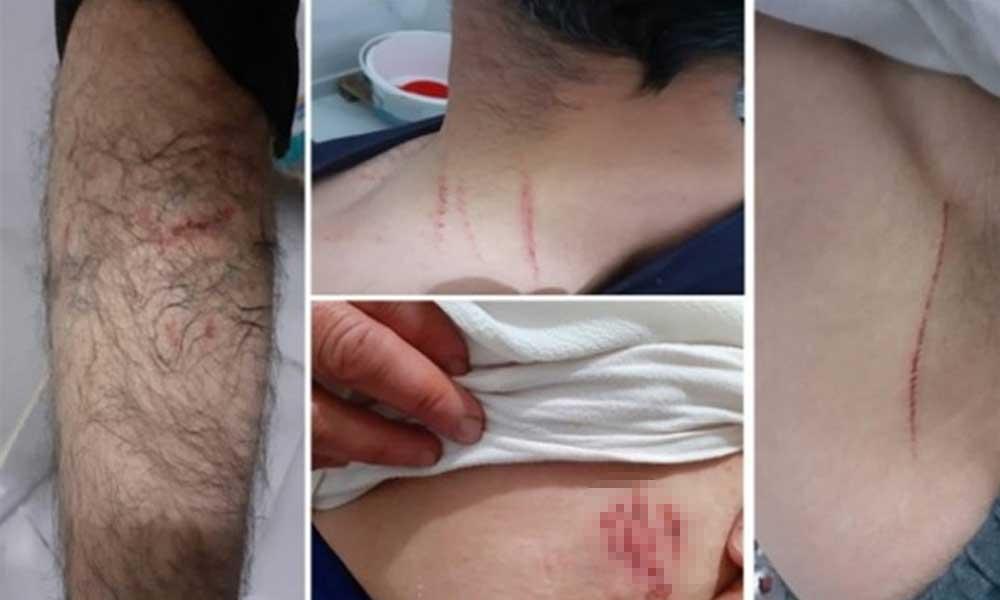 Diyarbakır Valiliği'nden köpekle işkence iddialarına yanıt: Kasıtlı değil