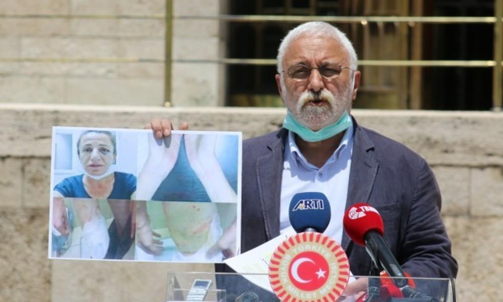 HDP'li Oluç: Esat Oktay yönetimi yeniden hortlatıldı