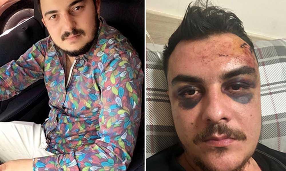 Dört kişi tarafından darp edilen Atakan 4 gün komada kaldı
