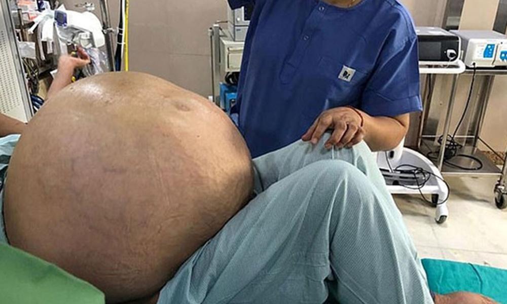 Tıp dünyası şokta! Dünyanın en büyük yumurtalık tümörü çıkarıldı