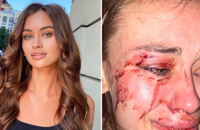 Ukraynalı model Daria Kyryliuk'u darp ettiği iddiasıyla gözaltına alınan kişi serbest bırakıldı