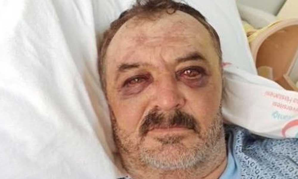 Uluslararası Af Örgütü'nden Türkiye'ye 'adil bir şekilde yargılanmalı' mektubu