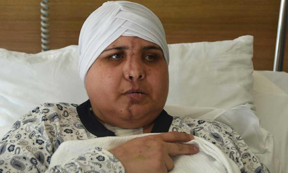 Trafik kazası sonucu yüzü ikiye ayrıldı: Ameliyatı 10 saat sürdü