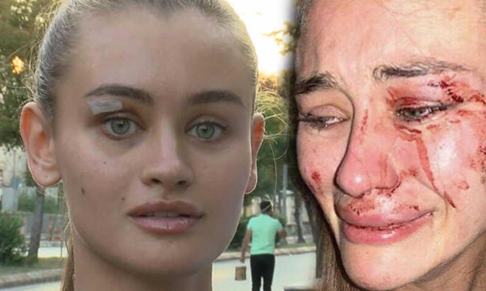 Çeşme'de darp edilen Ukraynalı model Kyryliuk hakkında rapor açıklandı