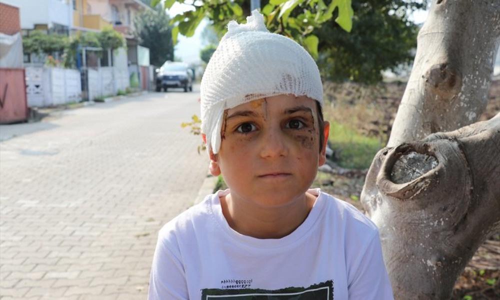 Çoban köpeğinin saldırısına uğrayan 8 yaşındaki çocuğa 52 dikiş atıldı