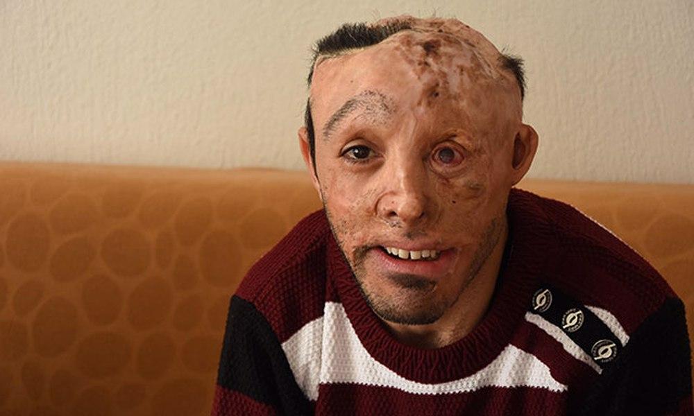 6 aylık bebekken yangında yüzü yanan Mehmet: Sonuna kadar gideceğim