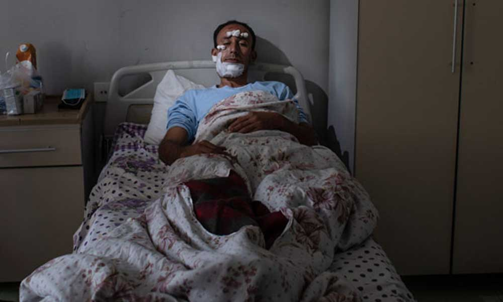 Azerbaycan'daki mezarlığa atılan top mermisi sonrası yaralananlar yaşadıklarını anlattı