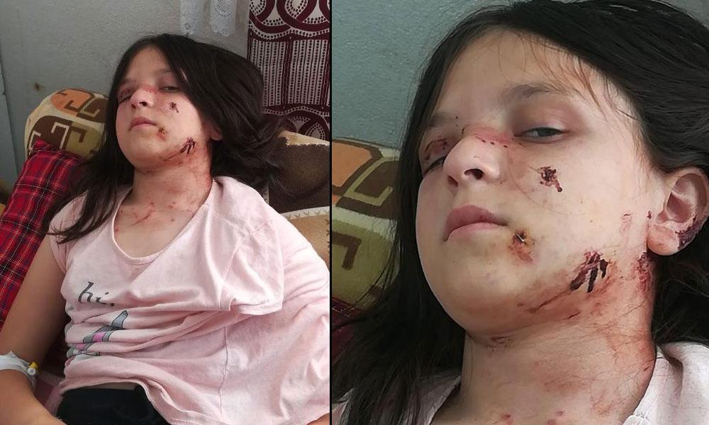 Samsun'da pitbull dehşeti: 60 dikiş atıldı