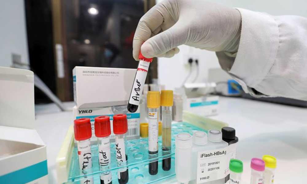 Güney Kore gribi ve koronavirüsü aynı anda tespit edebilen testi onayladı