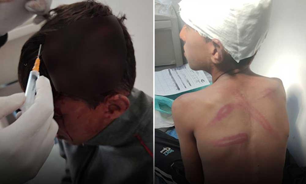 10 yaşındaki çocuğu döven şahıs, darbedilmediğini söylemesi için tehdit de etmiş