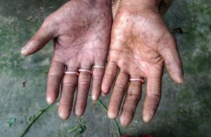 Bangladeş'te parmak izi olmayan aile görenleri şaşkına çevirdi