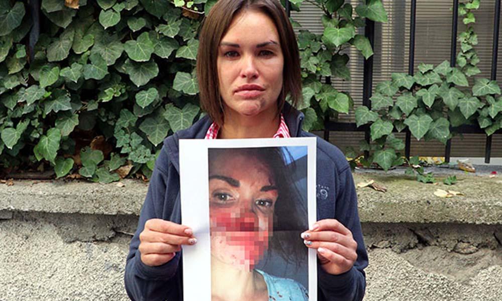 Kocası tarafından öldüresiye dövülmüştü… Evinde ölü bulundu